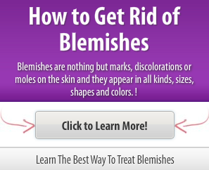 how to get rid of blemishes fast naturally