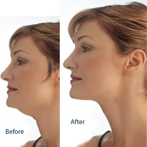 How to Lose Your Double Chin | Premium Health and Fitness Tips