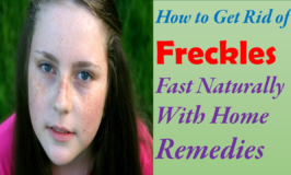 How to Get Rid of Freckles On Face Fast Naturally Permanently At Home With Home Remedies