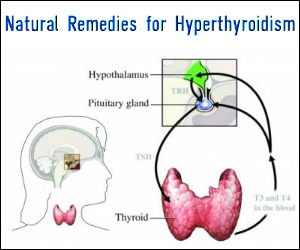 Natural Remedies for Hyperthyroidism