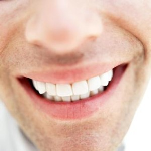 What Is The Best Over The Counter Teeth Whitening Product3