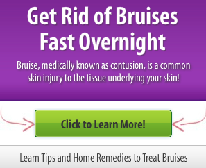 how to get rid of bruises fast overnight