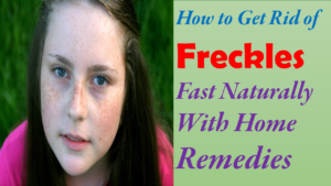 how to get rid of freckles fast naturally